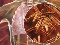 İnsandan insana bulaşabilen tüberküloz birçok organı etkileyebiliyor