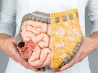 Araştırma: İştah kontrolü bağırsak florasının düzenlenmesiyle sağlanacak