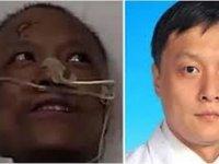 Dünyanın konuştuğu Çinli doktor hayatını kaybetti! Koronavirüs tedavisinden sonra ten rengi değişmişti