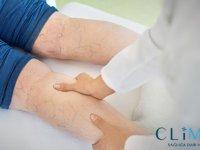 Noninvaziv Varis Tedavisi Seçenekleri Nelerdir? Kimlere Uygundur?