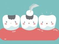 Diş Dolgusu ile İlgili Merak Edilenler Nelerdir?