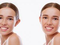 Kepçe Kulak Tedavi Edilebilir Mi? Kepçe Kulak Estetiği Nedir?