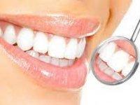 Diş Beyazlatma Nasıl Olmalı?