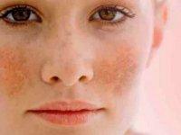 Gebelik maskesi hastalığı esmer ciltlerde daha sık görülüyor