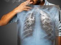 Akciğer Kanseri Cerrahi Tedavisi