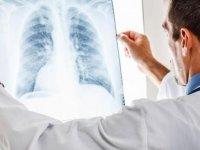 Genç Hastanın Akciğerlerinde Taş Görüntülendi !