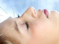 Migrende Akupunktur Tedavisi