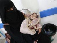 Yemen'de kol gezen kıtlık çocukların hayatını tehdit ediyor