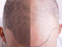 Türkiye'de Saç Ekimi Giderek Daha Popüler Hale Geliyor