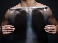Akciğer kanserinde radon gazının etkisi araştırılacak