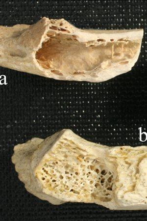 cancer-neandertal.jpg