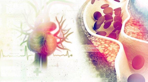 damar-sertligi-kolesterol-kalp.jpg