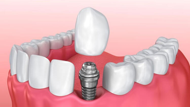 implant3.jpg
