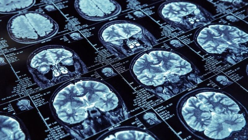 radyoloji-mr-beyin.jpg