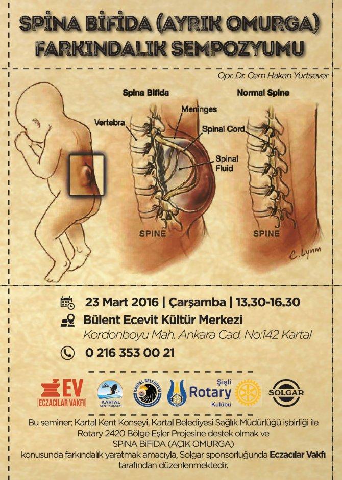 spina-bifida.jpg