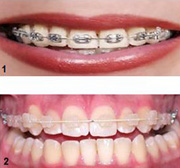 Ortodonti hangi yaşlarda uygulanabilir?